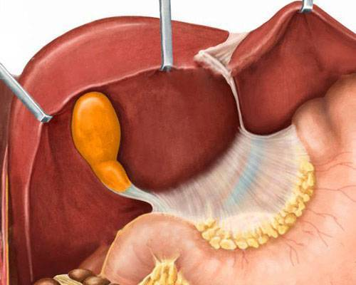 Дискинезия желчных путей — диагностика, симптомы и лечение