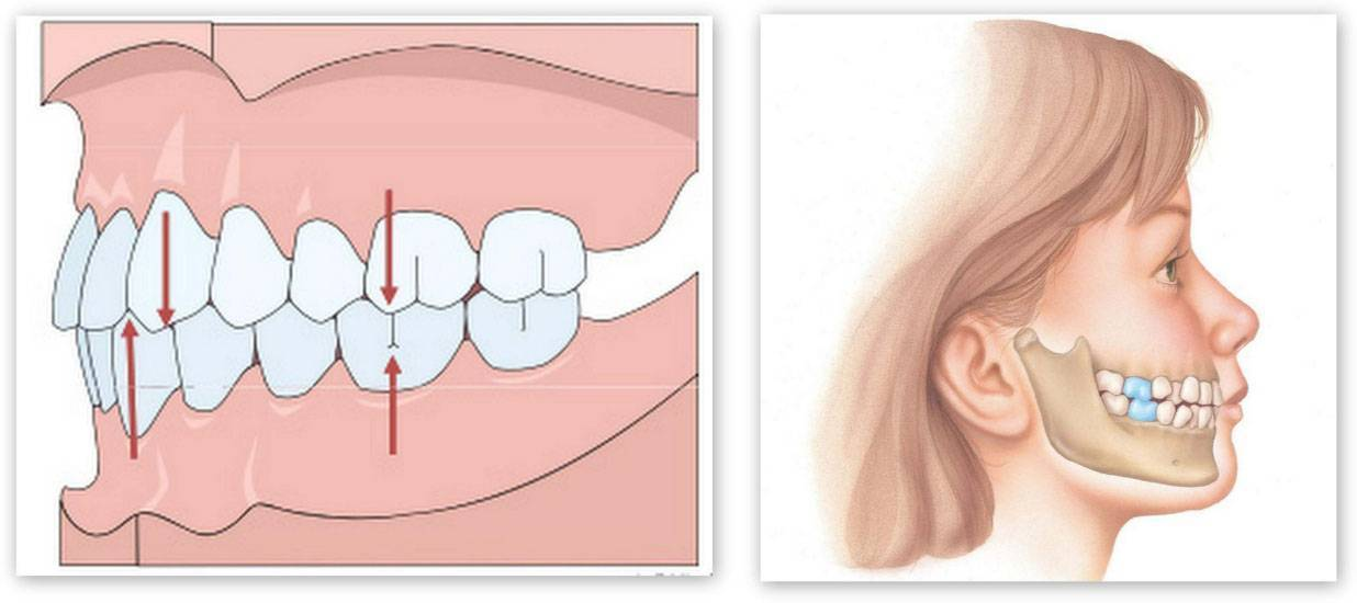 правильный прикус зубов у человека