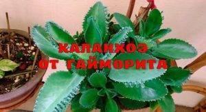 Каланхоэ при гайморите