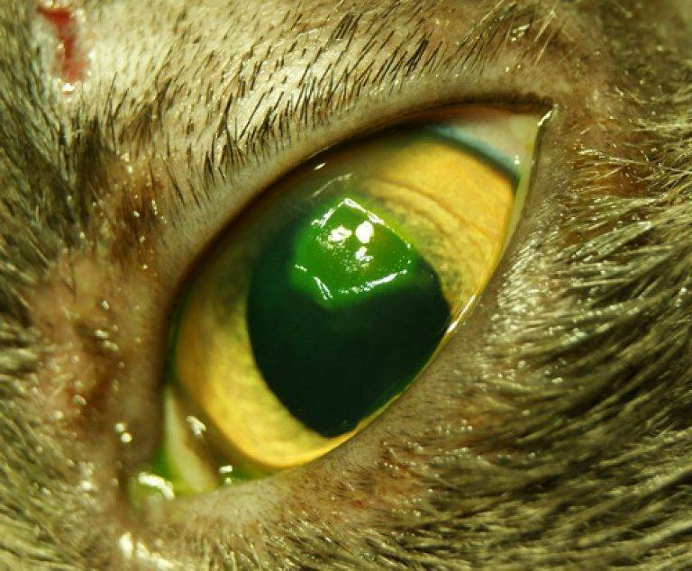 язва роговицы глаза у человека лечение