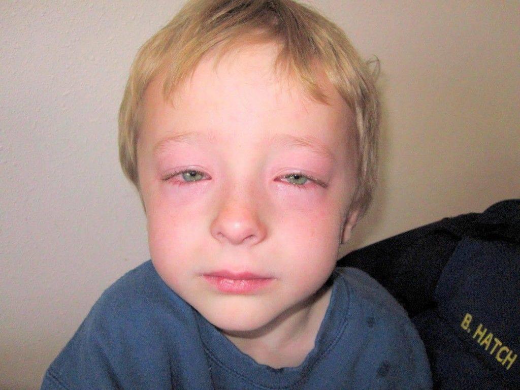 опух глаз у ребенка что делать
