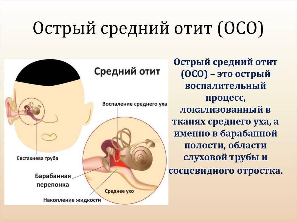 заболевание среднего уха