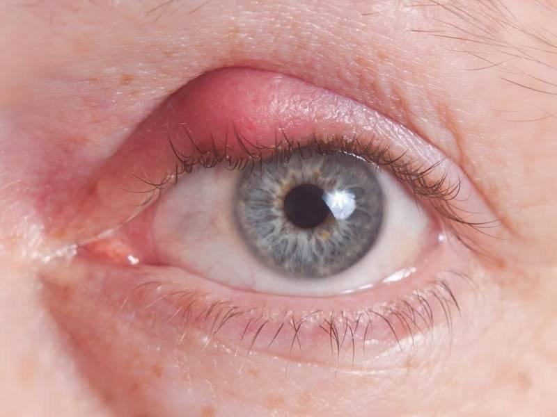 можно ли прогревать ячмень на глазу