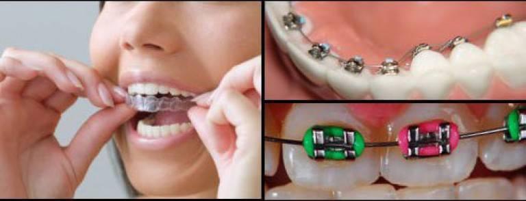 Пластинка для зубов. металлические брекеты: отзывы, цена