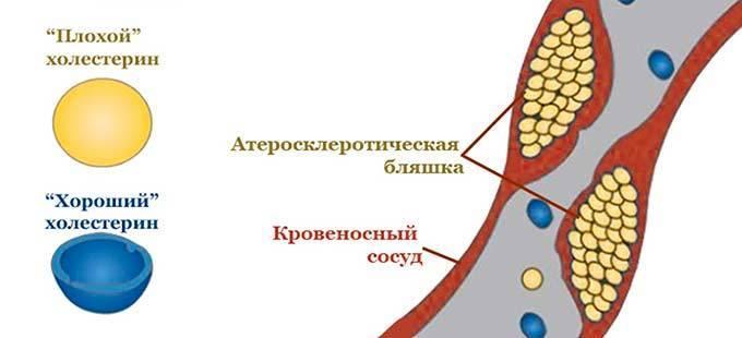 при холестерине артериальное давление