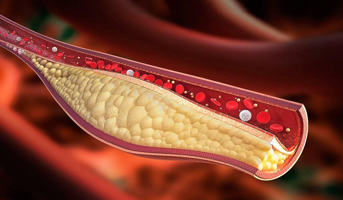 Как сберечь свое сердце и сосуды? боремся с холестерином