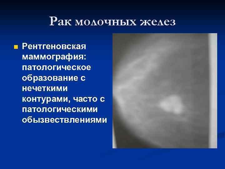 Новообразование молочной железы - симптомы и лечение