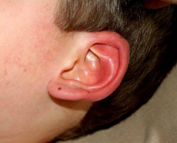 осложнения на уши после простуды