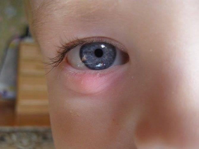 Ячмень на глазу у ребенка: причины появления и способы лечения