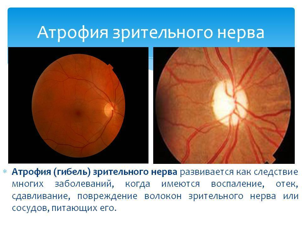 атрофия зрительного нерва лечение народными средствами