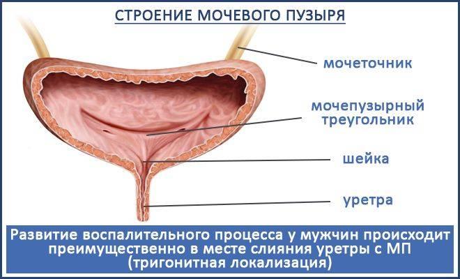 шеечный цистит симптомы
