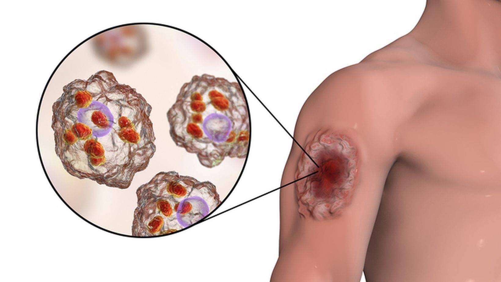 Кожный лейшманиоз у человека (пендинская язва) – симптомы, фото, лечение