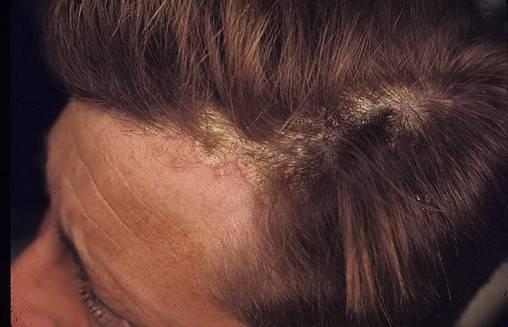 псориаз волосы выпадают