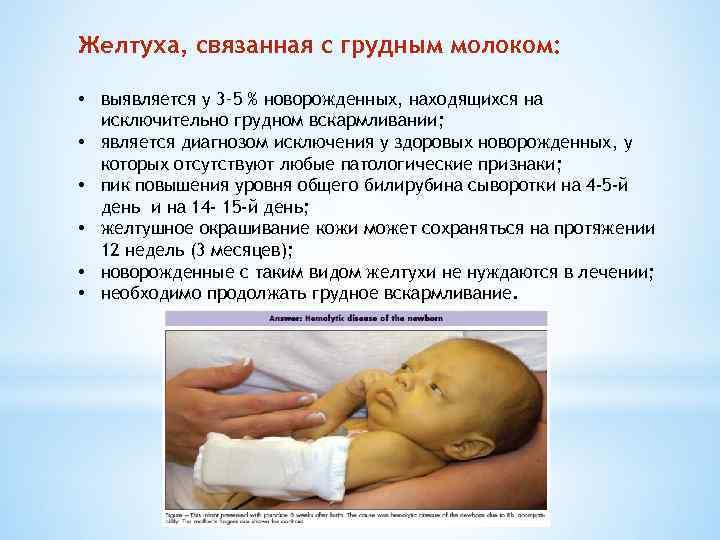 Как лечить желтуху у новорожденных в домашних условиях?
