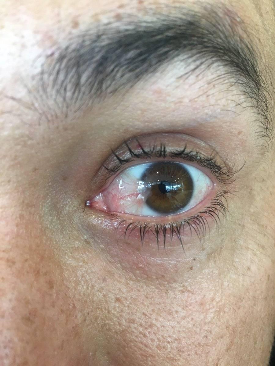 птеригиум глаза лечение