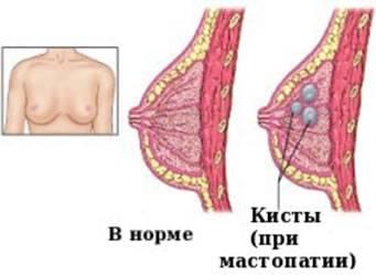 Дисгормональная мастопатия что это такое