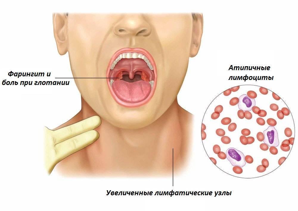 Вирусная ангина: лечение у взрослых, фото, симптомы, осложнения