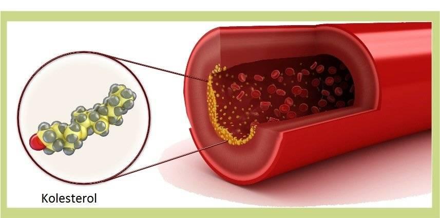 Последствия низкого уровня холестерина