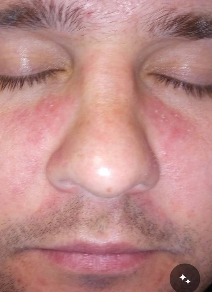 В носу постоянно образуются корки как лечить