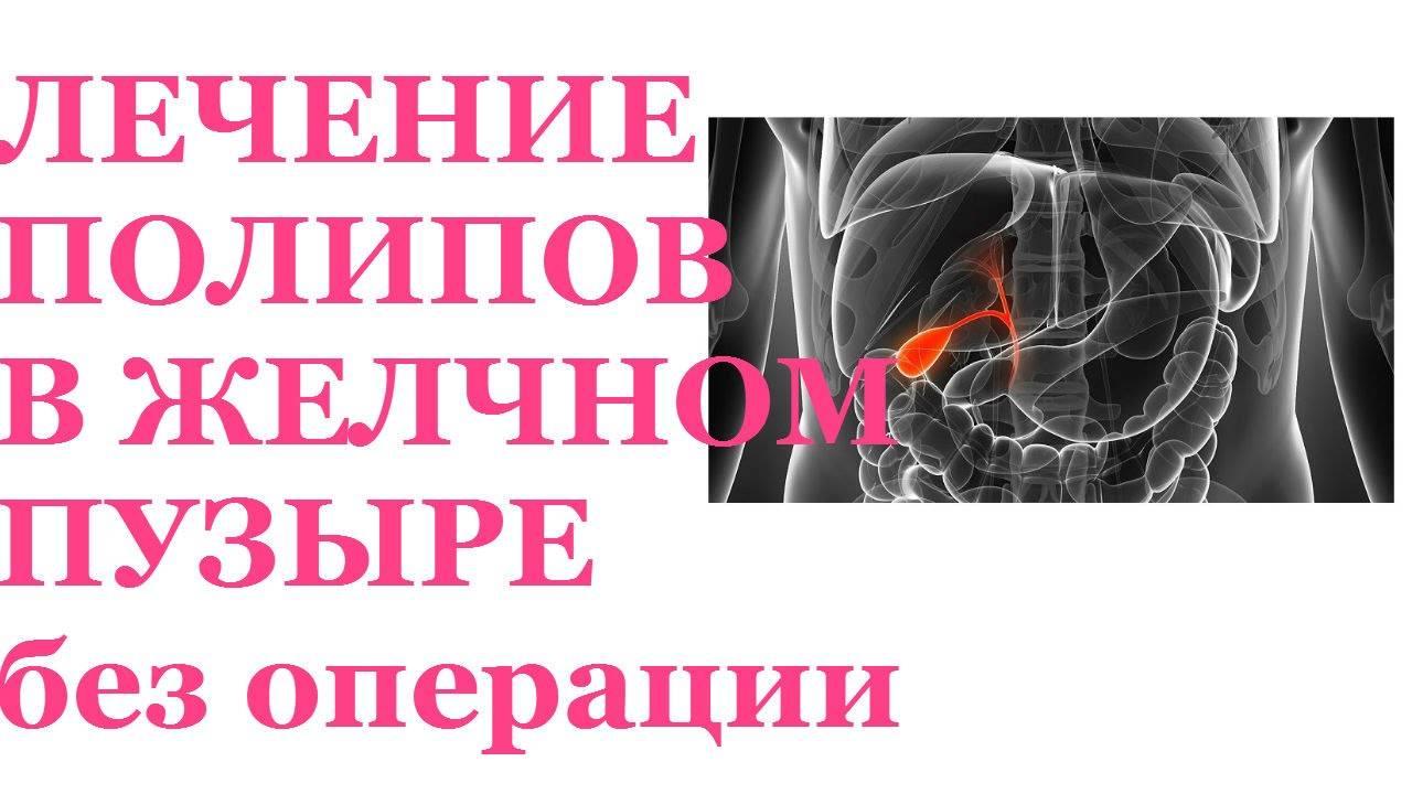 Лечение полипов в желчном пузыре народными средствамидиагностика и лечение печени и желчного пузыря