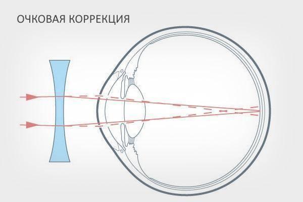 Коррекция близорукости: мир новыми глазами после операции