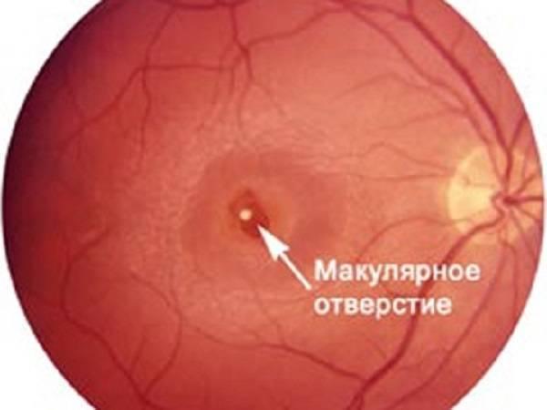 Возрастная макулодистрофия сетчатки (вмд)