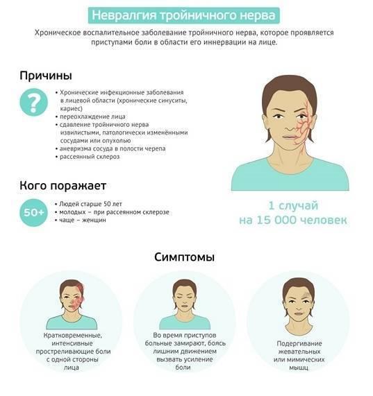 лечение неврита тройничного нерва препараты