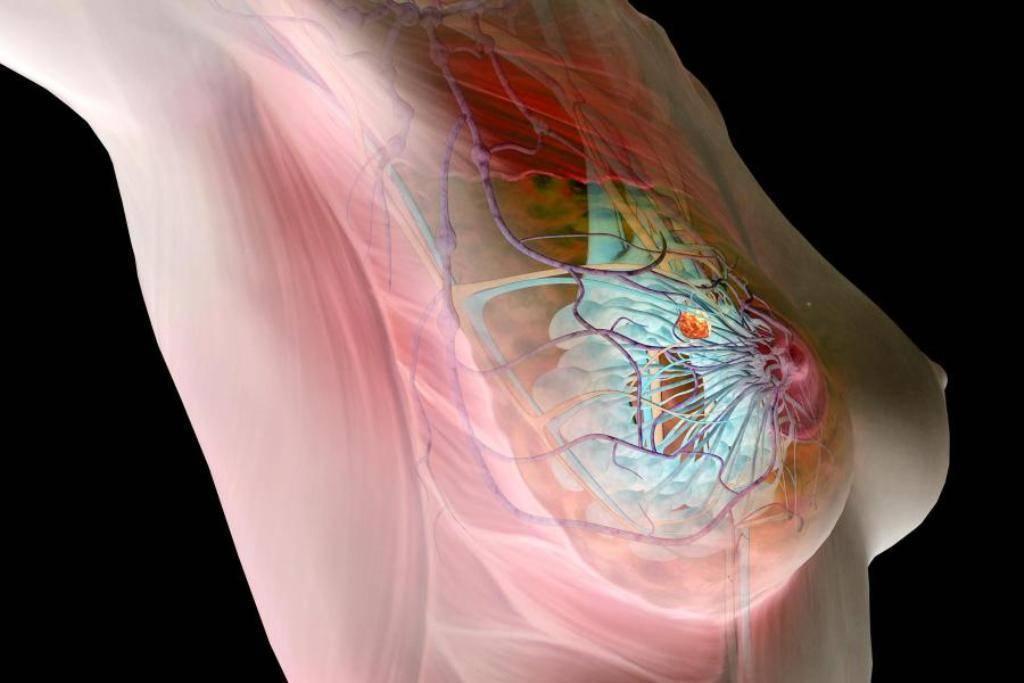 как быстро растет раковая опухоль молочной железы