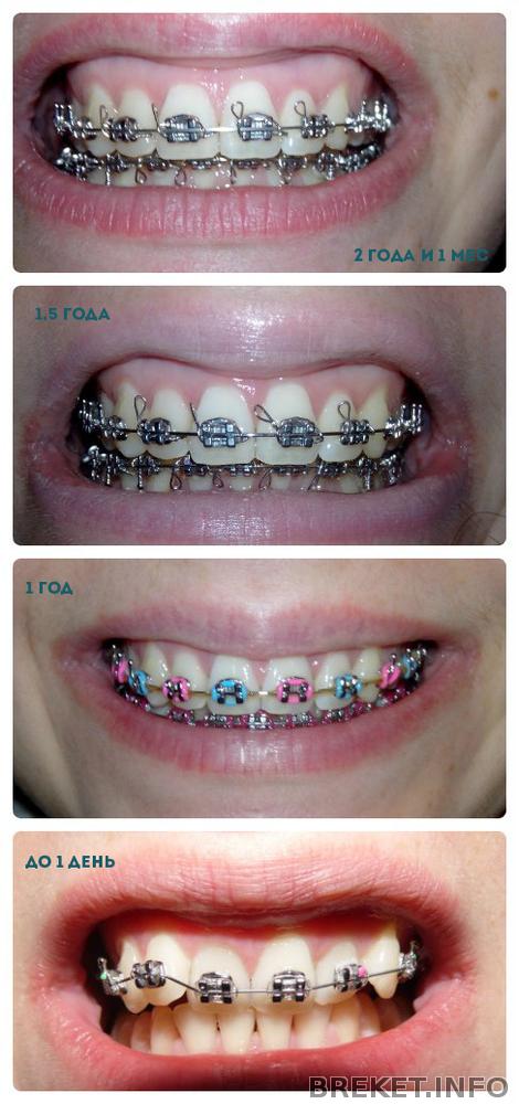 отвалился брекет на последнем зубе