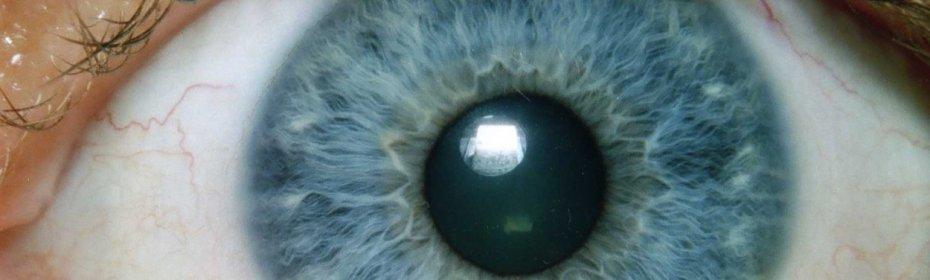 Пелена на глазу – ощущение белой пленки у человека