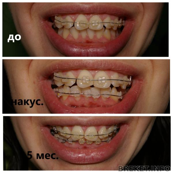 Cепарация зубов при ношении брекетов, нужно ли удаление зуба мудрости перед установкой, зачем четверки, восьмерки, фото до и после