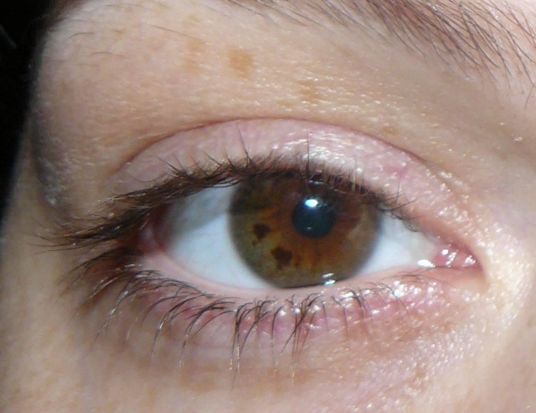 белое пятно в глазу