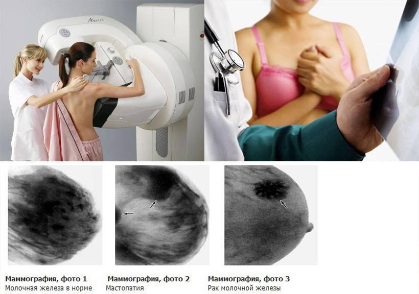 Как отличить мастопатию от рака молочной железы