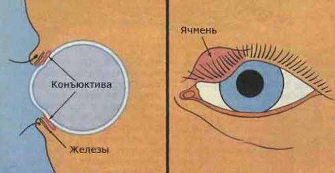 Три безопасных способа вылечить ячмень на глазу при грудном вскармливании