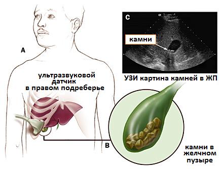 Деформация желчного пузыря у ребенка: причины, подход к лечениюдиагностика и лечение печени и желчного пузыря
