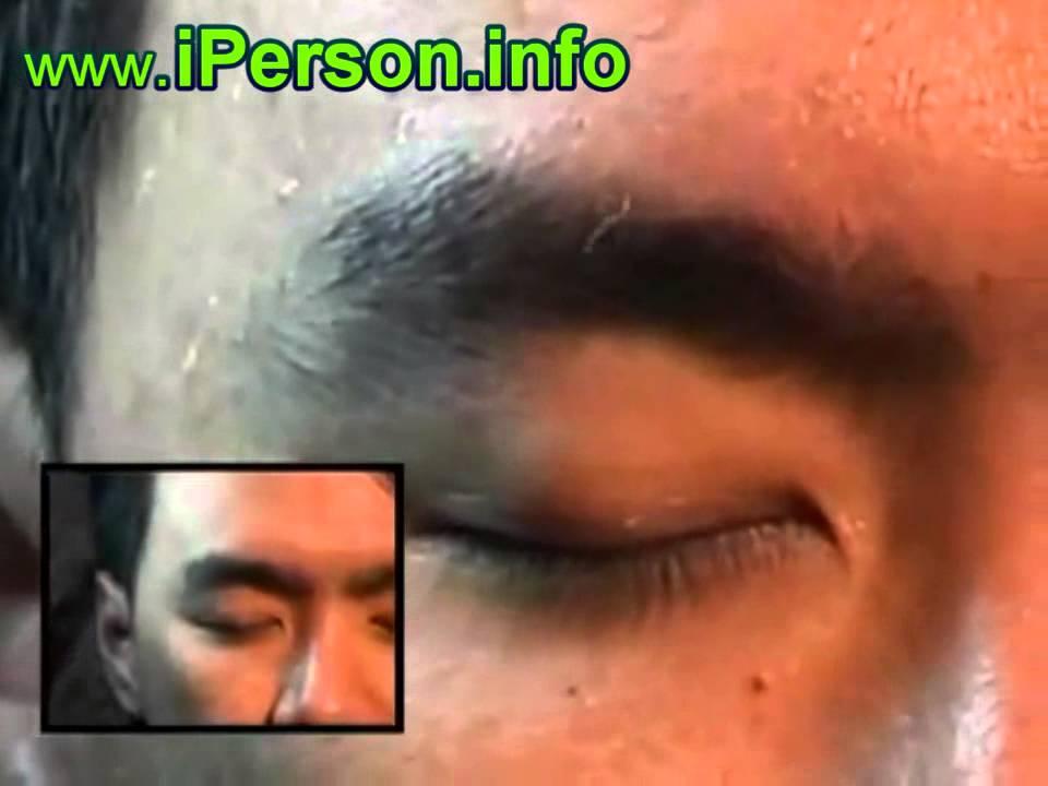 Черви под кожей или болезнь моргелонов