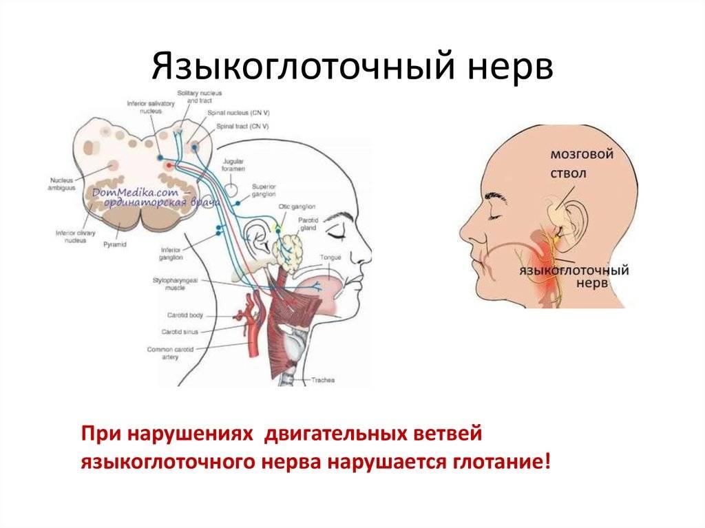Языкоглоточный нерв: невралгия