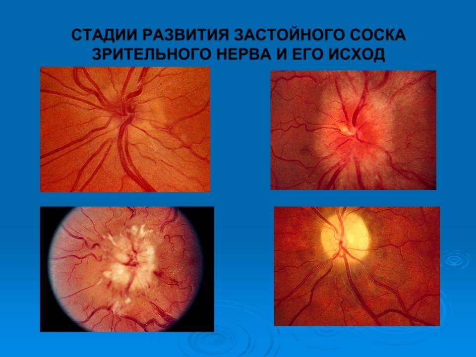 Отек диска зрительного нерва причины