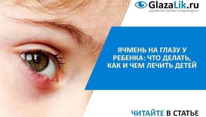 Ячмень на глазу у ребенка как лечить комаровский видео
