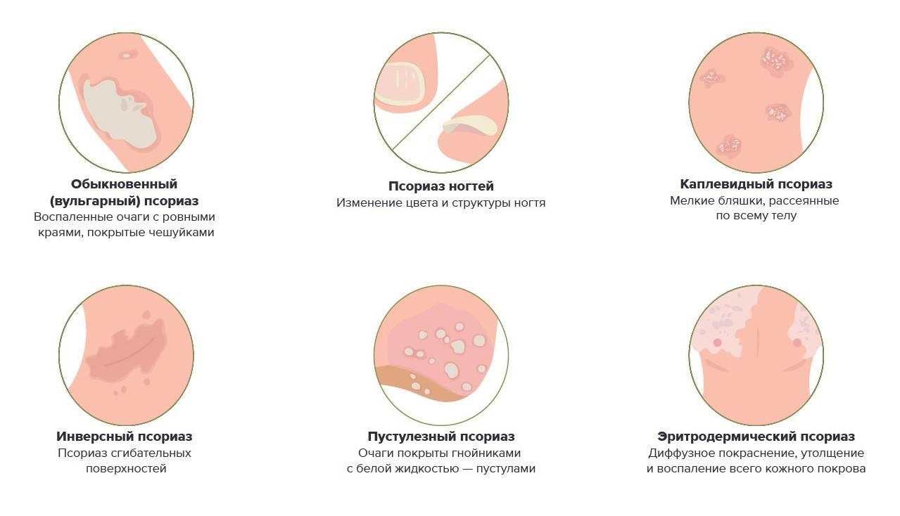 Что будет, если долго не лечить псориаз?