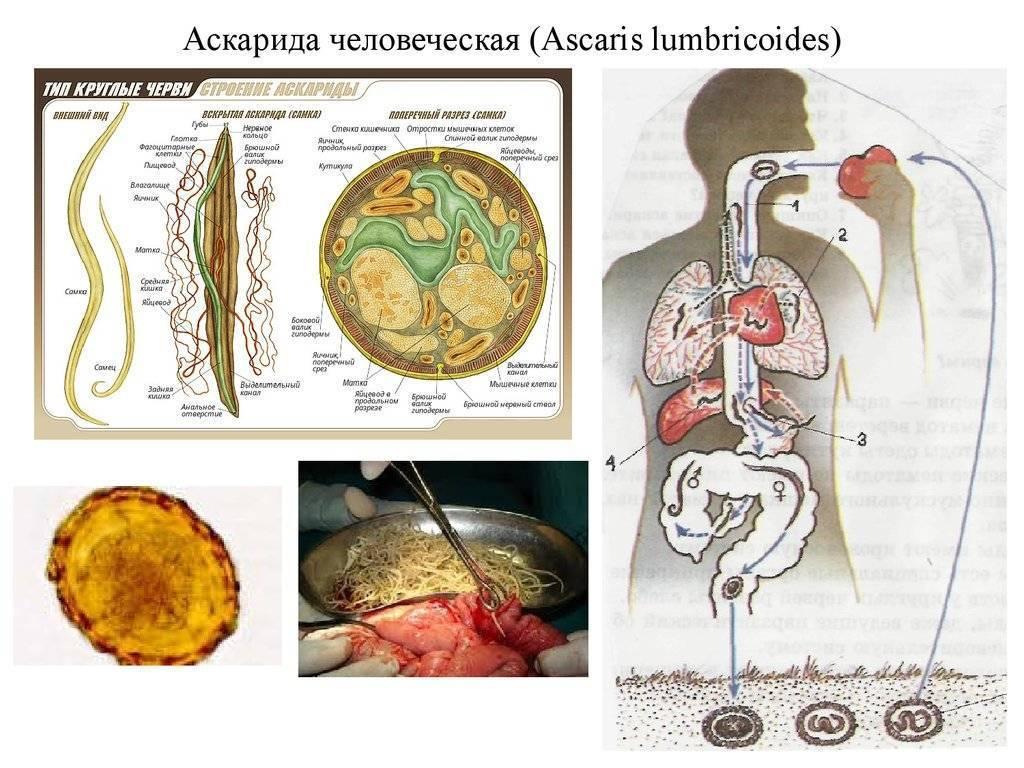 Лечение хронического аскаридоза у взрослых