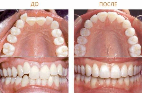 Выравнивание зубов без брекетов у взрослых — реальность или миф?