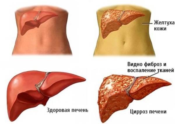 Симптомы и диагностика цирроза печени у женщин