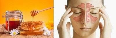 как лечить гайморит медом