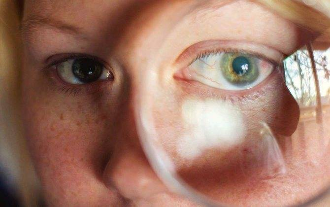 Ощущение песка в глазах и жжения: причины, лечение, капли