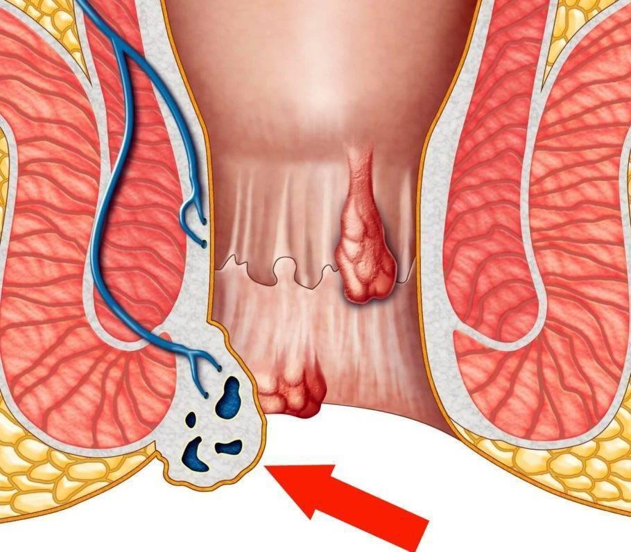 лечение тромба в геморроя