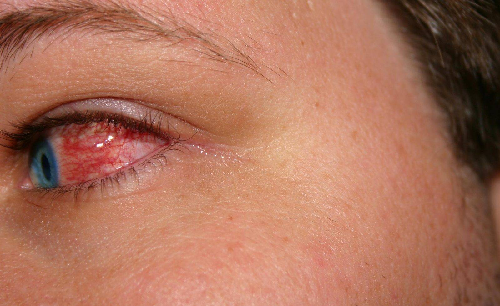 Причины появления и способы, помогающие убрать красноту с глаз