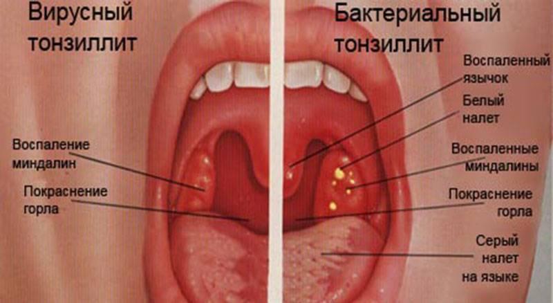 лечение при тонзиллите у взрослых