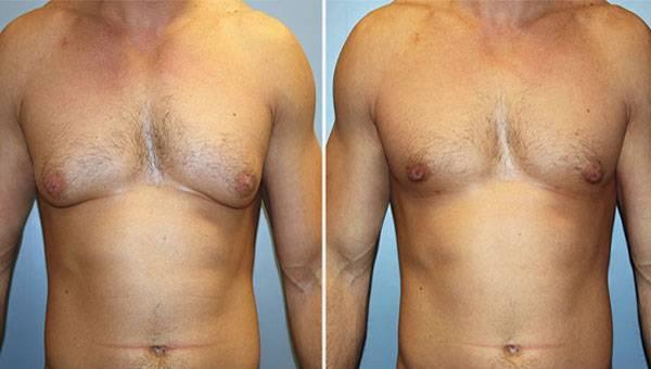 Гормоны для роста груди у женщин