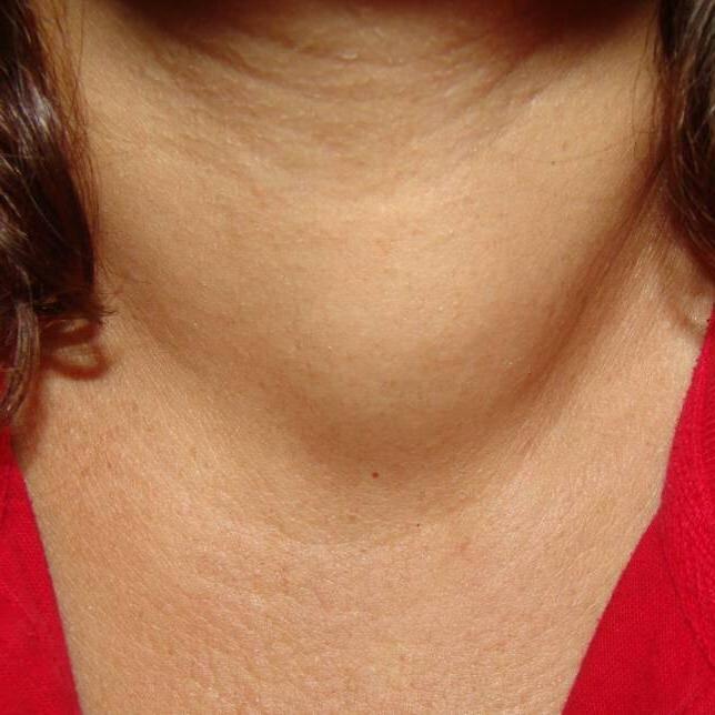 симптомы рака щитовидки у женщин